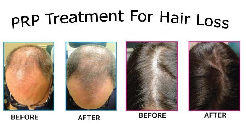 Advantages of Having PRP Hair Treatment