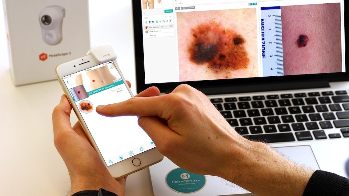 Global Tele dermatology