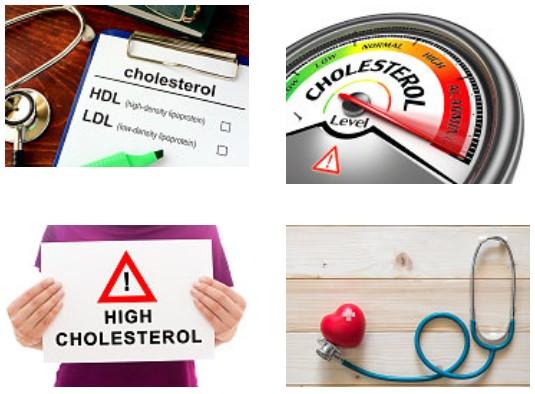 High Cholesterol treatment edgewater