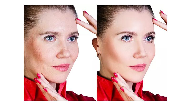 best under eye treatment for wrinkles