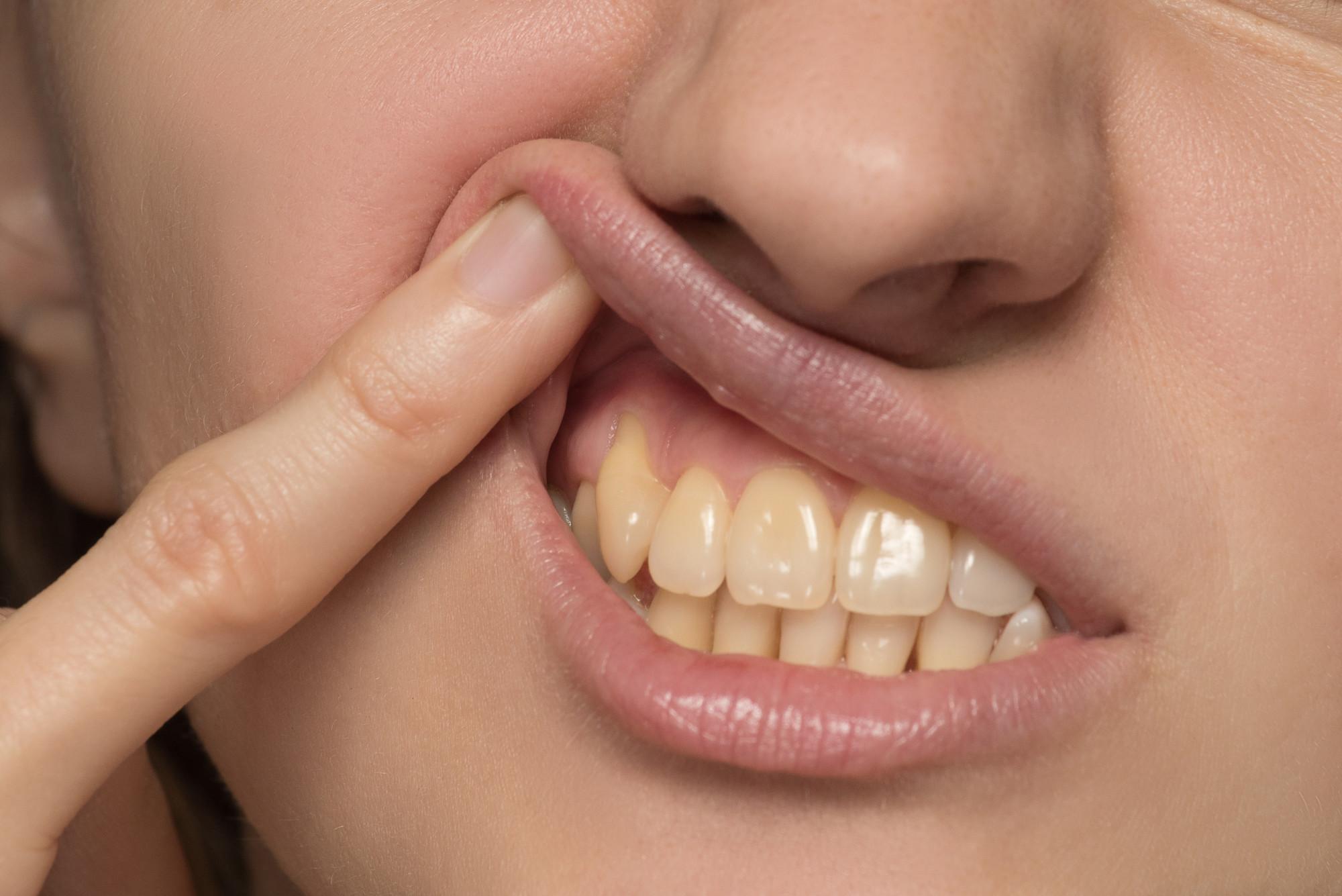 5 Ways to Restore Gum and Dental Health