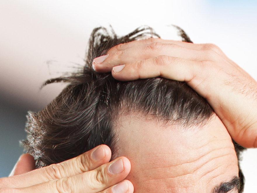 hair vitamin with biotin gummies