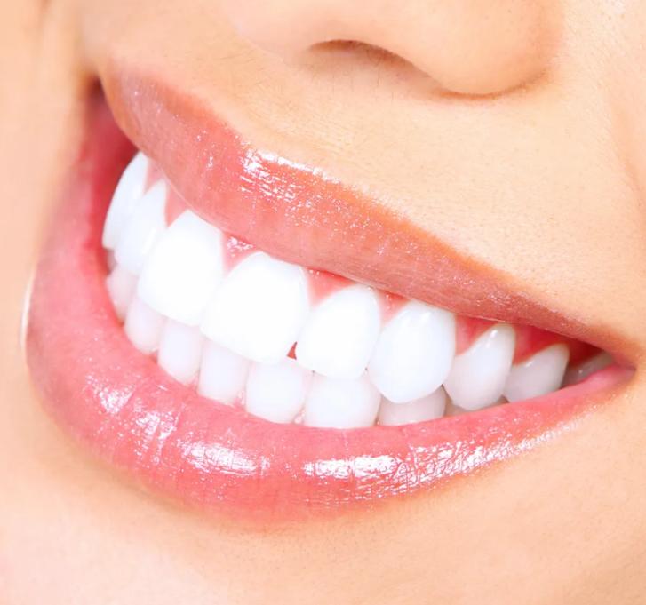 teeth whitening Huntsville